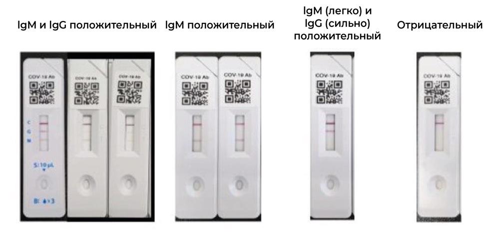 интерпретация результата IgG IgM.jpg